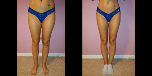 Before & After – Cellulite Reduction